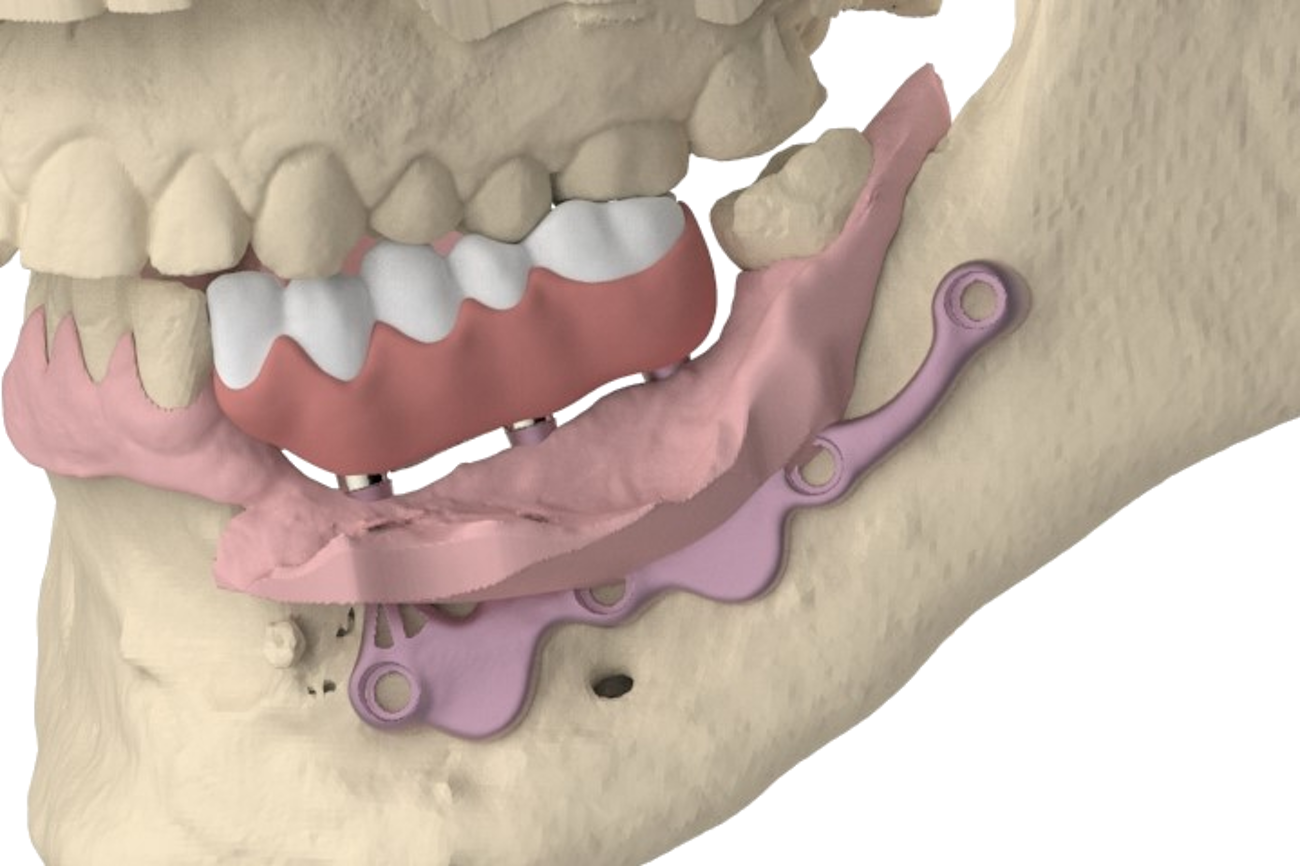 The AMSJI® concept, not only a suitable solution for the full edentulous jaw
