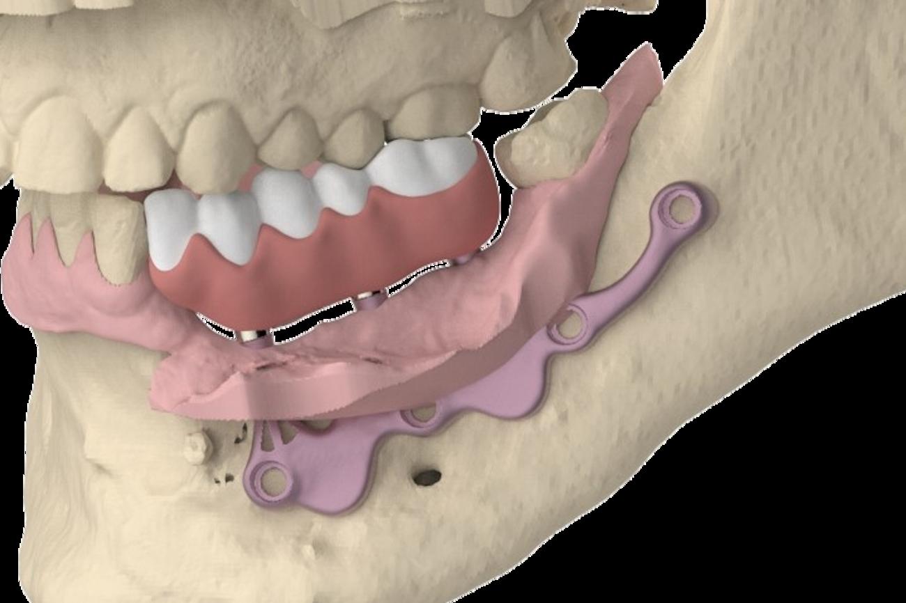 El concepto AMSJI®, no solo una solución adecuada para la mandíbula edentada completa