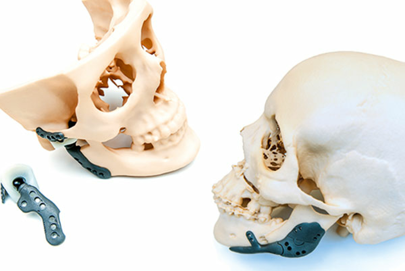 Article Engineeringnet - Surgical customization for prosthetic skulls
