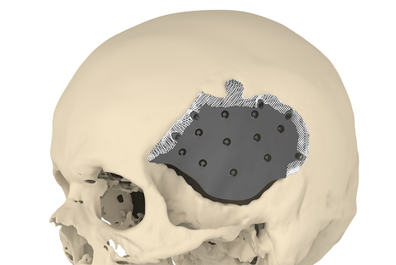 A novel implant enhances skull surgery outcomes