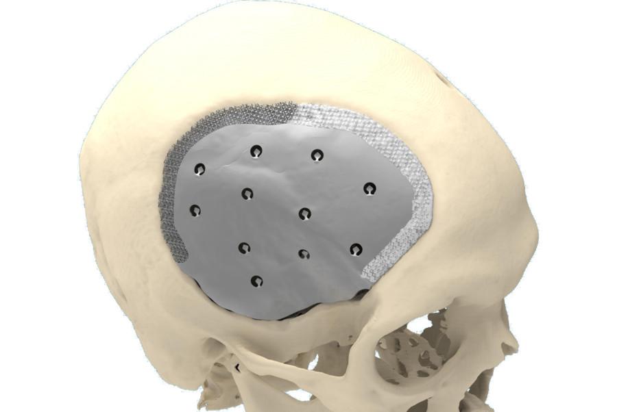 Repair of skull defect by CeTi