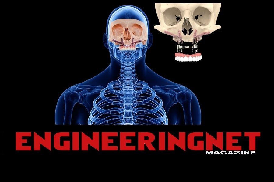 Artikel Engineeringnet - Chirurgisch maatwerk bij schedelprothesen