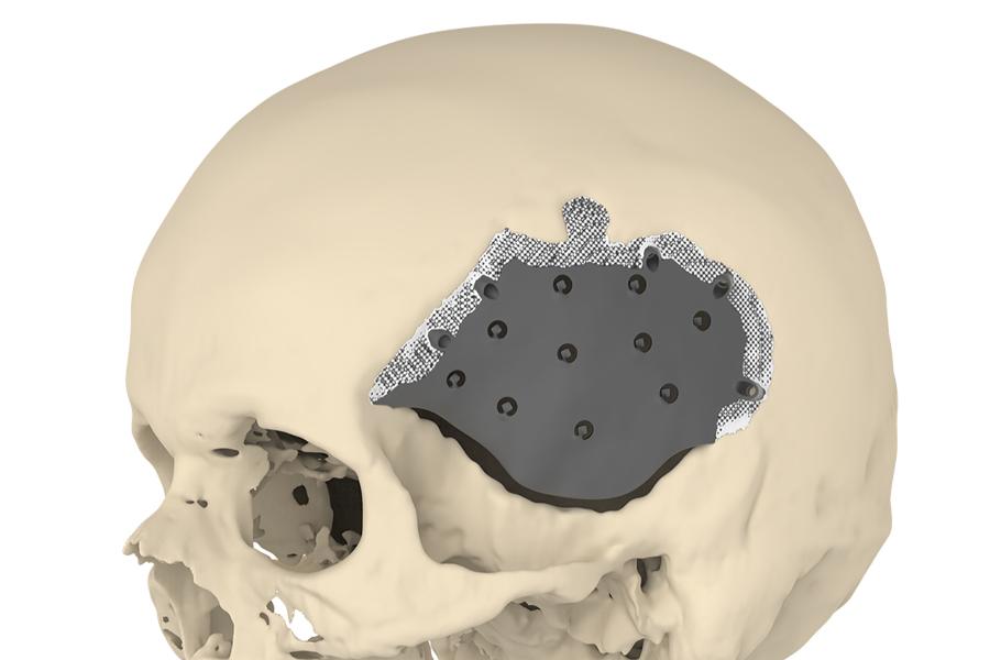 A novel implant enhances skull surgery outcomes