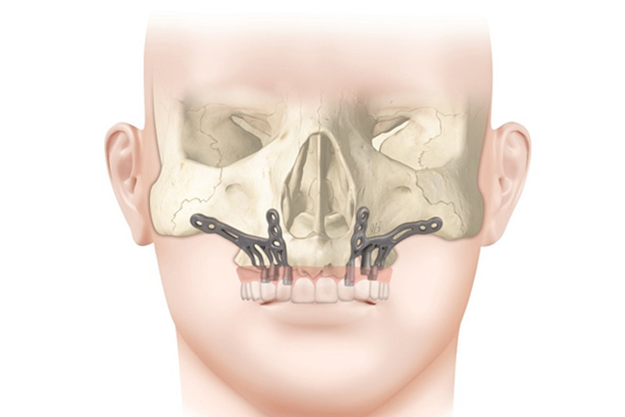 Article about AMSJI on DentalAcademy.it