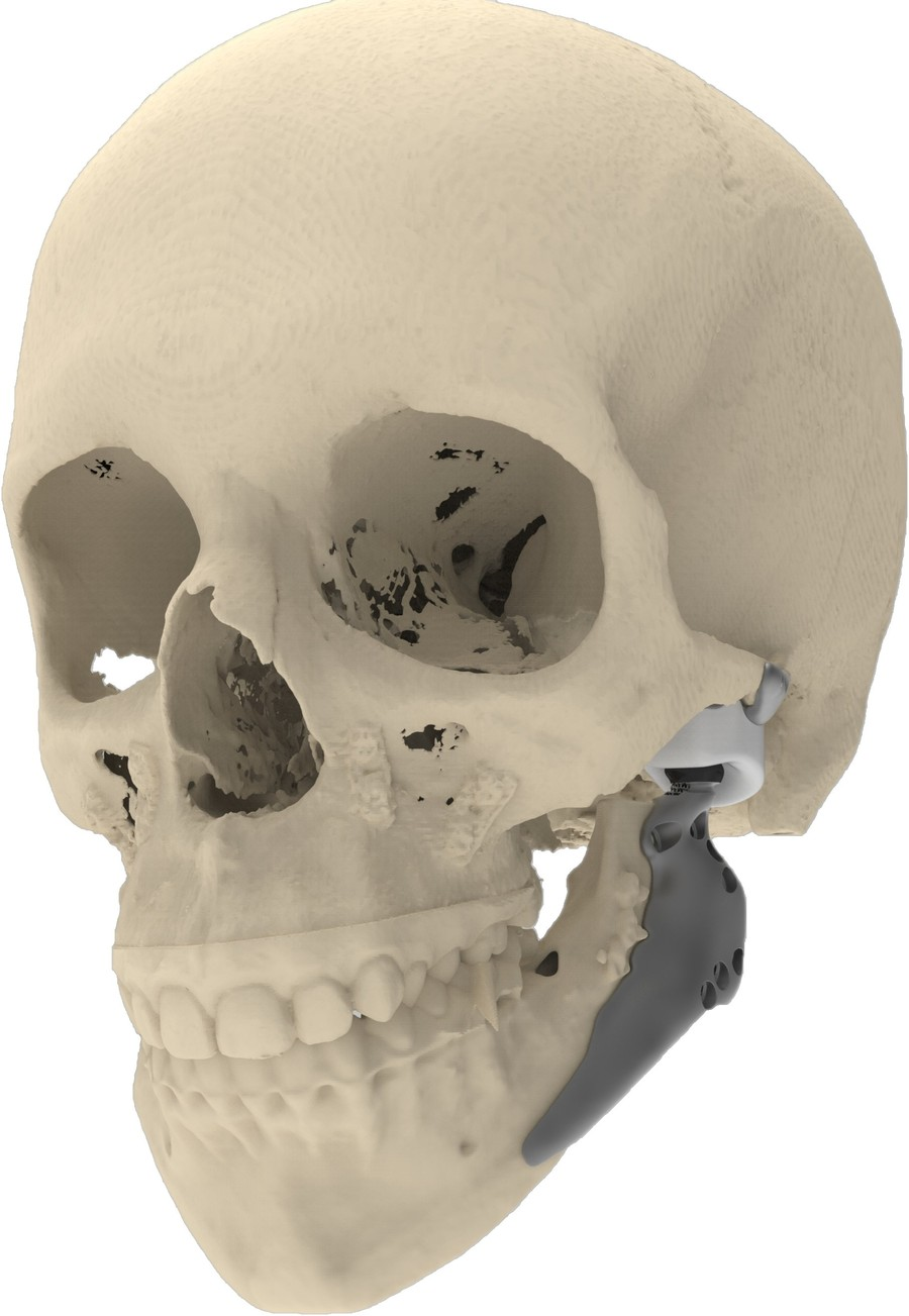 Bilateral TMJ total joint replacement