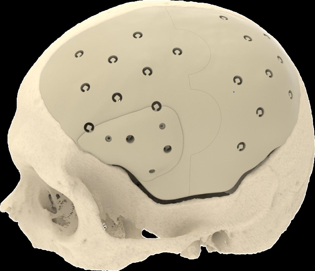Cranioplastiche